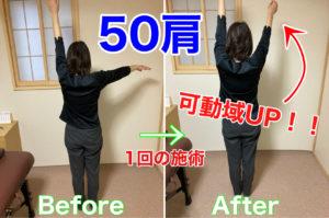 50肩は〇〇にアプローチするのが効果的!